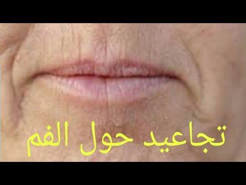 علاج تجاعيد حول الفم تجاعيد الابتسامة فيديو شامل Youtube