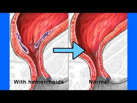 How To Get Rid Of Hemorrhoids In Just 2 Days How To Shrink Hemorrhoids Fast And Naturally How To Shrink Hemorrhoids Getting Rid Of Hemorrhoids Hemorrhoids