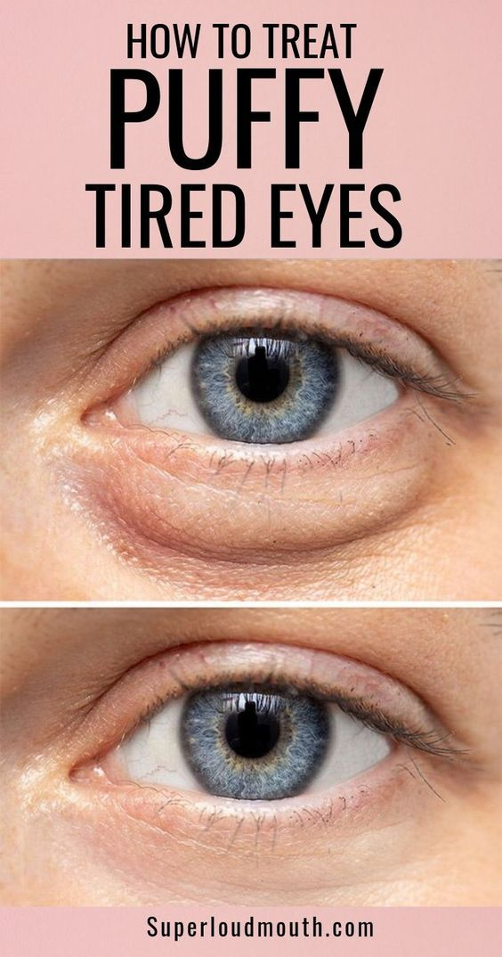 6527664425d2d051afdf36db4e95fb93 - How To Get Rid Of Tired Looking Eyes Naturally