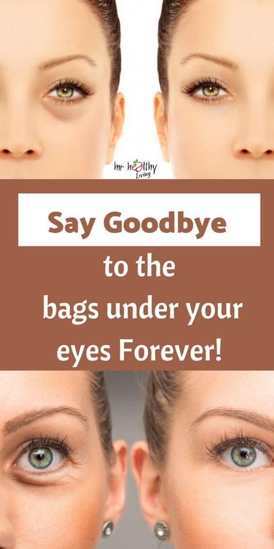 6528c480ded13f717e762418d4a60017 - How To Get Rid Of Bags Under The Eyes Instantly
