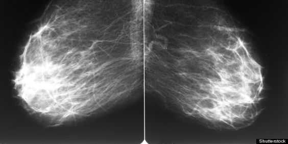 A Life-Saving Question: Are My Arteries Calcified