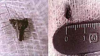 Abducciones extraterrestres. ¿Realidad o mentira colectiva? 656261eacb7c37909739abe4df163904
