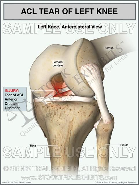 Acl Tear Of The Left Knee Acl Tear Cruciate Ligament Knee