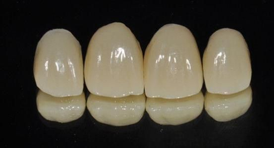 A Lot Of Patients Are Now Choosing The German Brand Wieland Dental Crowns Over Domestic Brands Why Although Domestic Br Dental Crowns Dental Porcelain Crowns