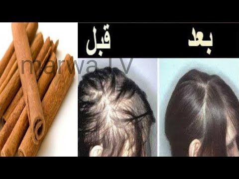 كنز في كل بيت ينبت الشعر في مقدمة الراس بسرعة والنتيجة مبهرة تعالج الصلع والتساقط الشديد Youtube Skin Care Mask Skin Care Health Diet