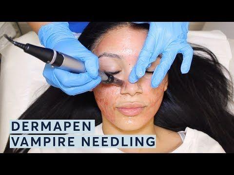 جهاز ديرما بن الجلسات و الفوائد و تجربتي قبل و بعد بالصور لجهاز Dermapen Dermapen Sessions Benefits And Experien Dermapen Microneedling Treatment