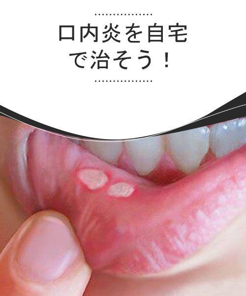 に うわ 口内炎 あご 口の炎症|口・あごの病気|分類から調べる|病気を調べる|病気解説2600項目|根拠にもとづく医療情報の提供|家庭の医学 大全科