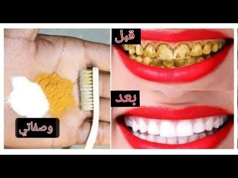 في دقيقتين تبييض الأسنان في المنزل أسنان بيضاء مثل اللؤلؤ وصفة طبيعية Halloween Face Makeup Halloween Face Face Makeup