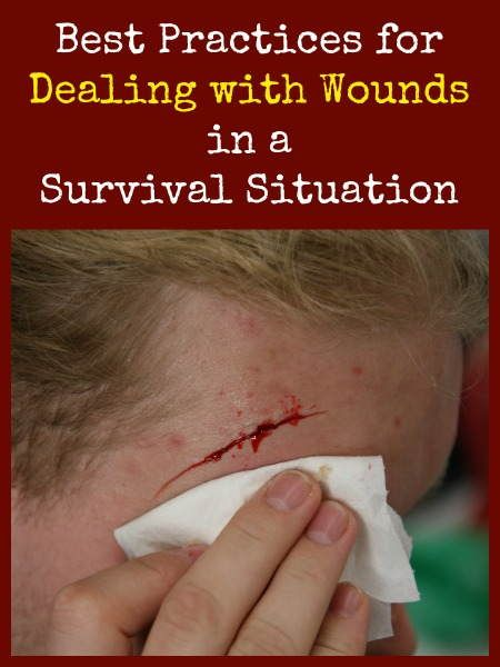 Dealing with Wounds in a Survival Situation | Backdoor Survival
