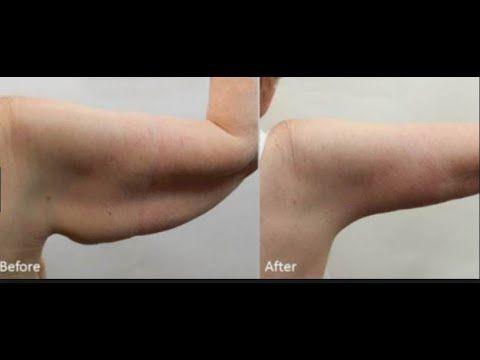 6653eb36f4e3d8dbfd1f411a483e2604 - How To Get Rid Of Flabby Upper Arms Fast