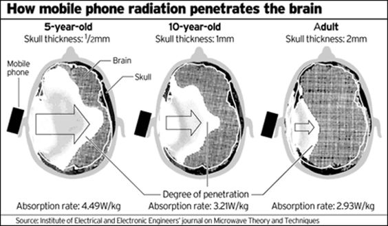 Како паметни телефони утичу на здравље  Претерана употреба паметних телефона може да изазове здравствене проблеме. Које компликације могу изазвати наши уређаји и шта треба урадити да би се они избегли? Према лекарима, лоше држање изазвано гледањем уекран пам�