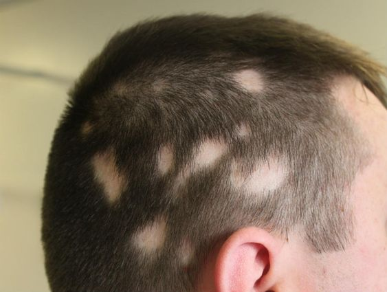 Understanding how alopecia areata can be treated or stopped is a mystery. According to experts, no perfect cure is available for this condition. However, some hair growth methods can be used to...