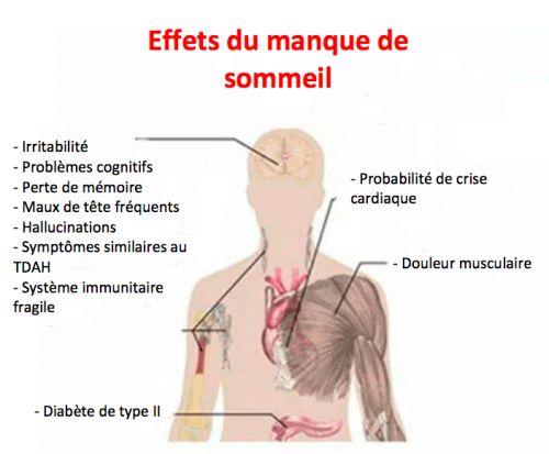 7 effets graves du manque de sommeil 66c6f37a505358012d7f260c9fe8a621