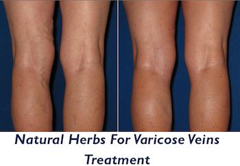 Herbs for varicose vein treatment...tested on me...
