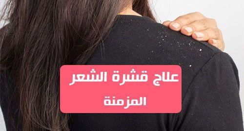 علاج قشرة الشعر المزمنة تحدث قشرة الشعر بسبب جفاف الجلد والبشرة الدهنية المتهيجة ونمو البكتيريا والفطريات على فروة الرأس وحالات ال Cards Against Humanity Human