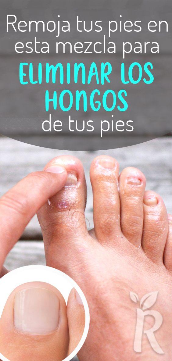 manchas negras en las uñas del pie