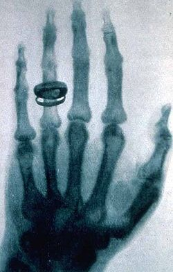 First Ever X-ray