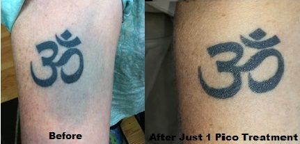 After just 1 picosure treatment our product favorites for Picosure tattoo removal maryland