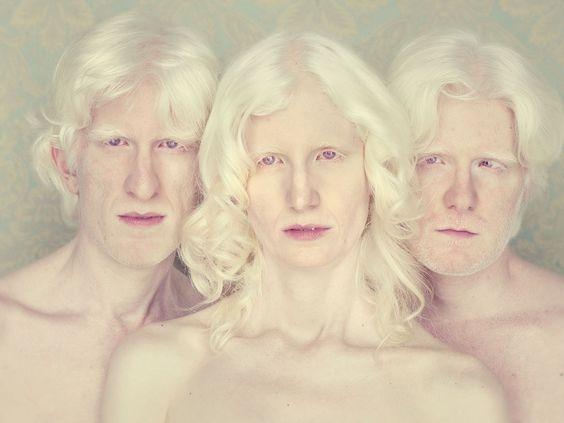 gustavo lacerda albinos - Cerca con Google