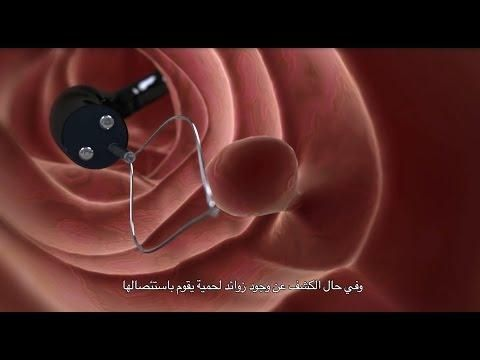 فحص القولون Celestial Bodies Body Electronic Products