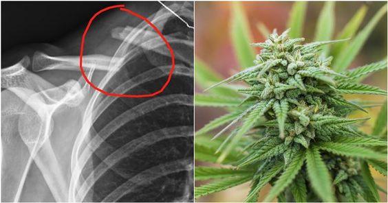 Scientists Discover Marijuana Actually Helps Heal Broken Bones | Spirit Science