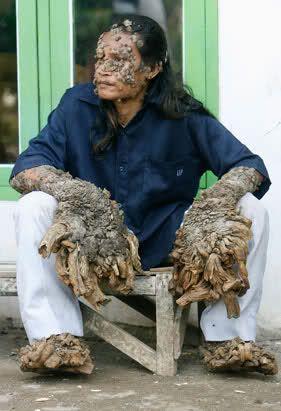 Tree Man: Human Deformities