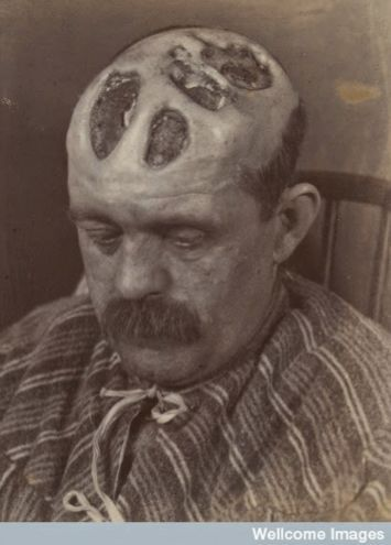 Syphilis, 1894.: