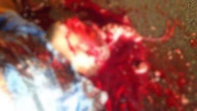 Homem fica com cabeça dilacerada após Duplo Homicídio: ift.tt/1VTyzHa