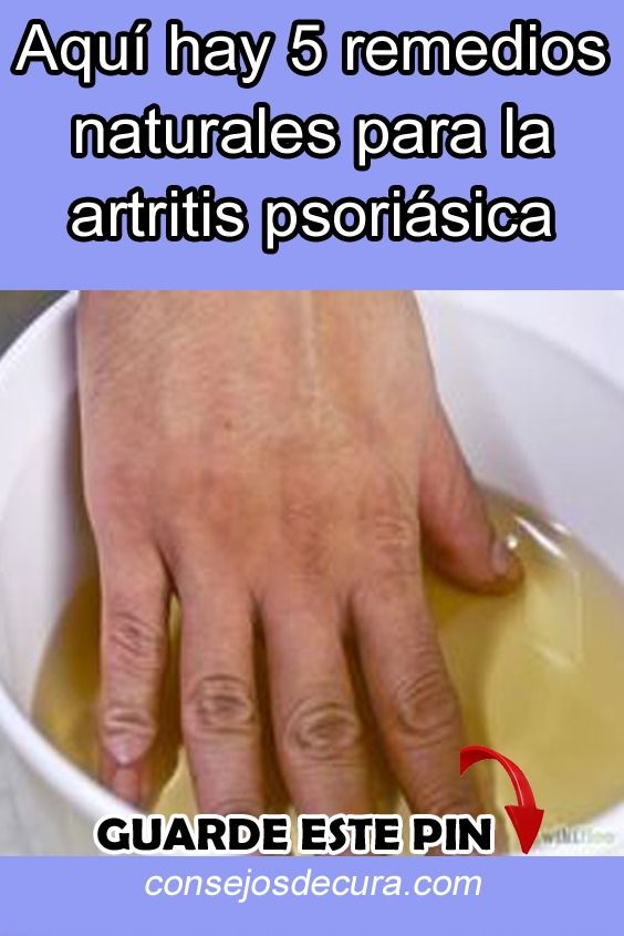 remedios caseros para la artritis psoriásica