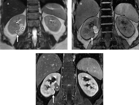 Kidney : Radiology | Have it all!