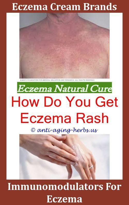 Anti Eczema Shampoo What Can Cause Eczema Garlic For Eczema Signs Of Eczema Cat Eczema Pictures Best Otc For Eczema How Eczema Cream Eczema Shampoo Eczema Cure