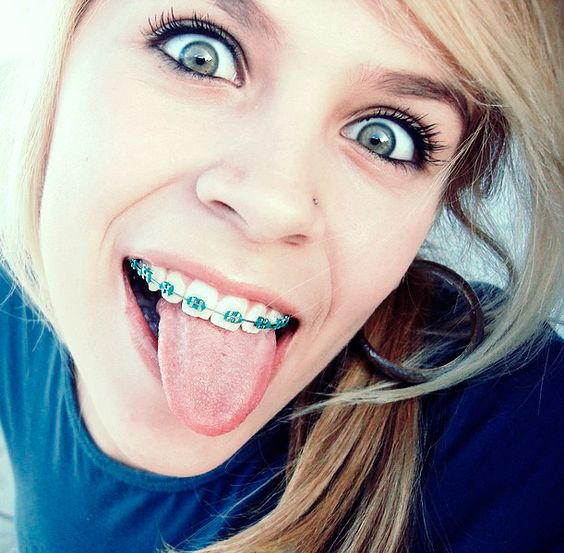 Loving The Color Blue http://girlswithbraces.co/post/97164858248/loving-the-color-blue