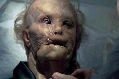 Mason Verger makeup from Hannibal. SO so amazing. (underneath that terror mask is the beautiful Gary Oldman):