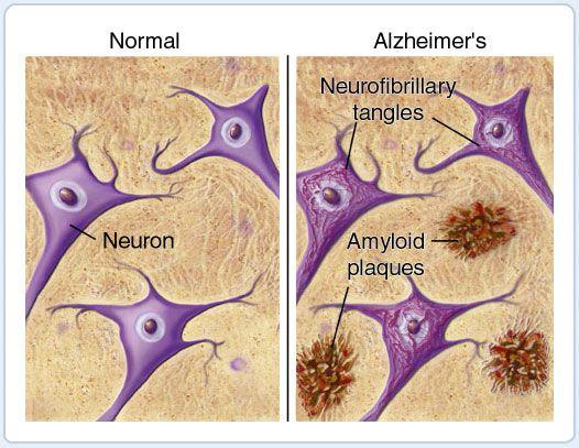 alzheimers vs normal