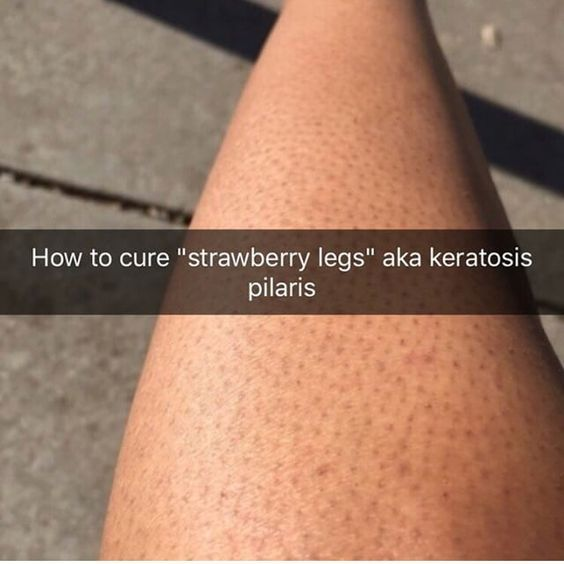 68d38149c54750d54c6d3a892a24a80e - How To Get Rid Of Strawberry Spots On Legs