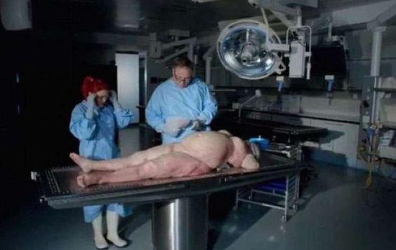 Grasa amarillo neón y un hígado como paté: Autopsia expone los brutales efectos de la obesidad