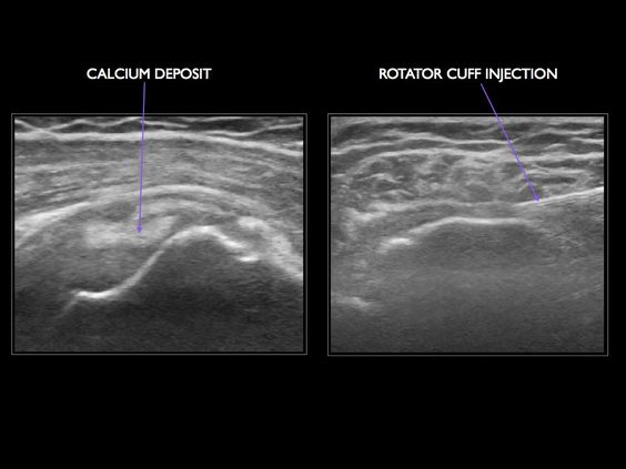 Other uses of Ultrasound are detecting, and in some cases eliminating, calcium deposits from the rotator cuff. It is also useful to make selective infiltrations of the structures of the shoulder.