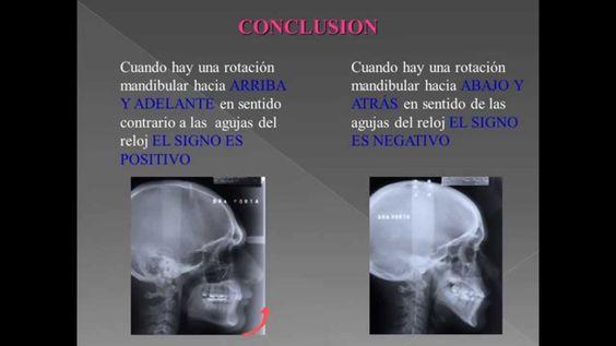 Cefalometria de Ricketts: La Mejor Explicación!!