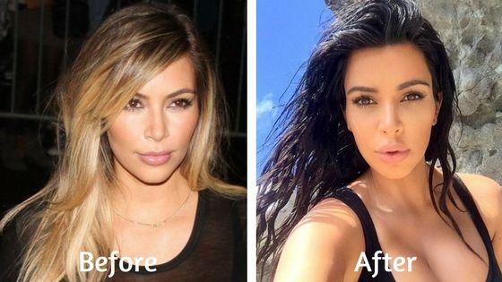 kim kardashian plastic surgery
