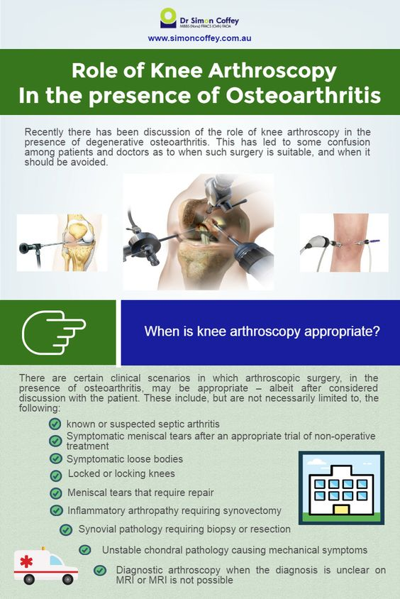 The Role of Knee Arthroscopy in the Presence of Degenerative Osteoarthritis.  #Kneearthroscopy #arthroscopyknee #Arthroscopy