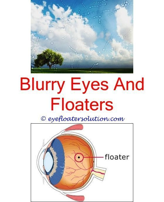 Eye Floaters After Looking At Computer White Floater In Eyes What Causes Eye Floaters Naturally R Dry Eyes Causes Floaters And Flashes Eye Floaters Treatment