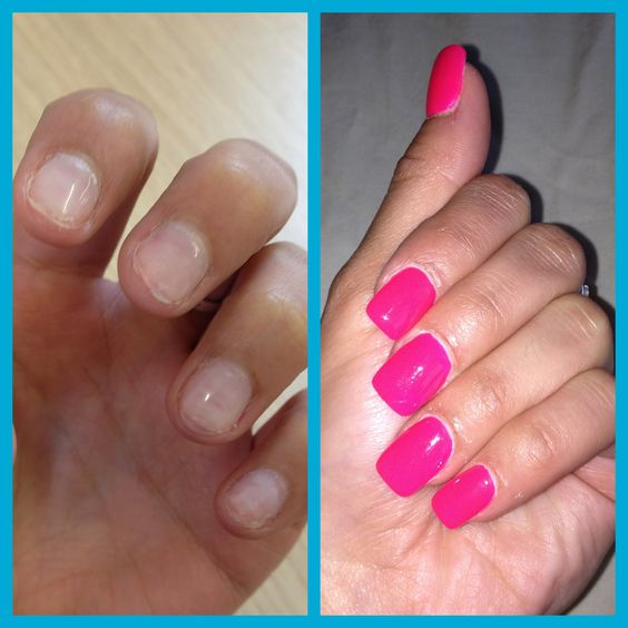 Badly Bitten Nails To Hot Pink Painted Full Set Of Acrylics