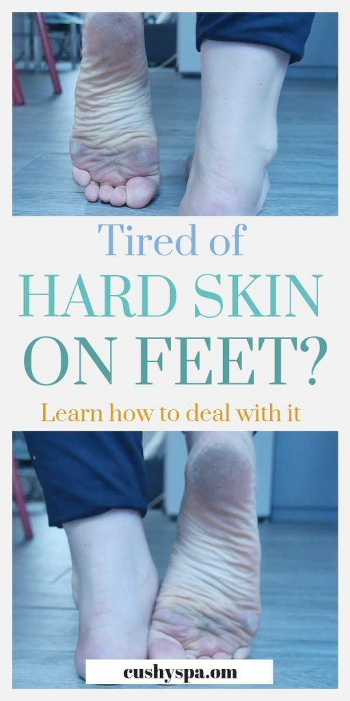 How To Get Rid Of Dead Skin On Feet Step By Step Guide Dead Skin On Feet Hard Skin On Feet Dry Skin On Feet