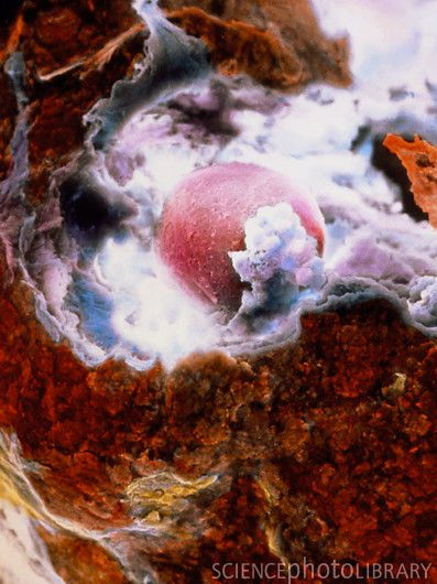 Ovulation.  The egg (pink at centre) has ruptured the external surface of the ovary (brown), known as the germinal epithelium, and has started its journey through the Fallopian tube towards the uterus.: