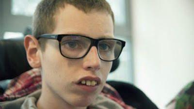 Oi mãe: Britânico com síndrome rara quebra silêncio após 16 anos: via Massapê Ceará - ift.tt/1Pj5fRd
