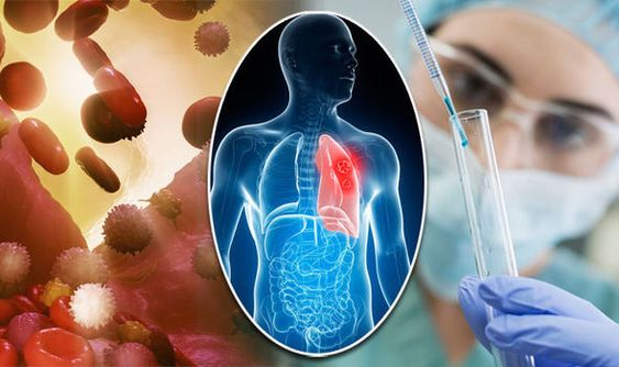 After Cancer Treatment: Health Tips Everyone Needs To Know