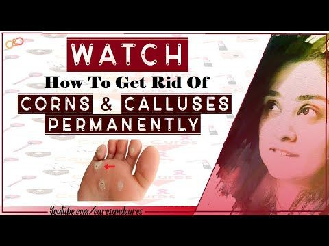 6a6f099adeead23b0606bb08bd9efe15 - How To Get Rid Of Callus On Toes Permanently
