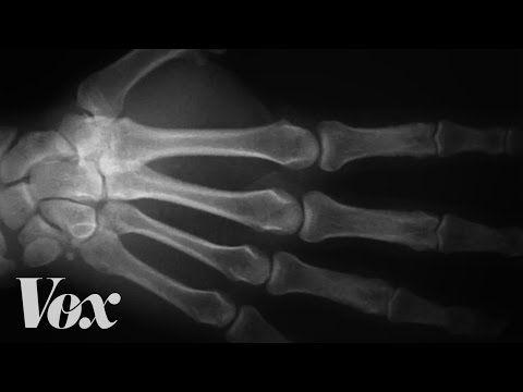 #Saude: Estalar os dedos causa algum risco para a saúde? ↪ Por @jpcppinheiro. Você já estalou os dedos ou viu alguém estalar, não? Além de irritante, isso pode ser perigoso para a saúde do seu dedo? Já pensou nisso? Veja só! http://www.curiosocia.com/2015/03/estalar-os-dedos-causa-algum-risco-para.html