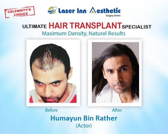 Book free appointment today with Award Winning Hair Transplant Specialist Dr. Zulfiqar Tunio (FRCS) For information & Details Call Now : +923002991016   Website : http://www.liasc.com/   #hairtransplantkarachi #fuehairtransplant #hairtransplantpakistan #hairtransplant #hairtransplantlahore #laserinn #liasc