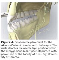 alternative mandibular nerve block techniques
